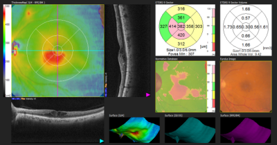 Comprehensive Macular Diagnostics